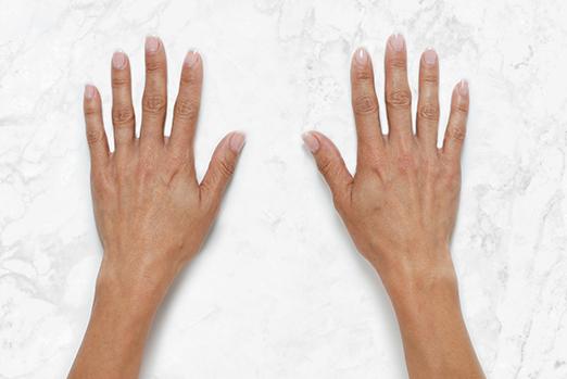 ReRestylane Lyft Hands Before