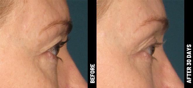 Ultherapy Before and After Photo Brow