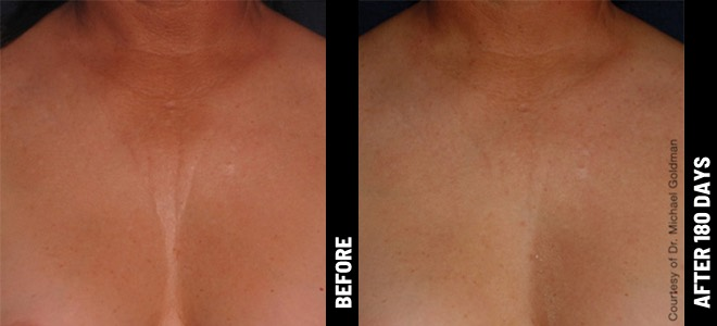Ultherapy Before and After Photo Decolletage