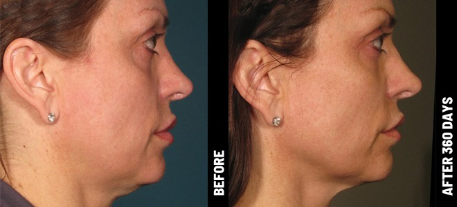 Ultherapy Before and After Photo Face