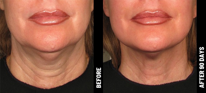 Ultherapy Before and After Photo Neck