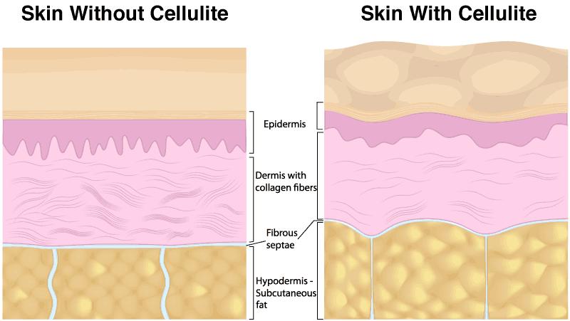 Cellulite Reduction Skin Diagram