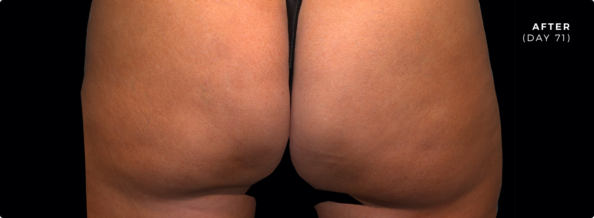 QWO Cellulite Reduction After 1