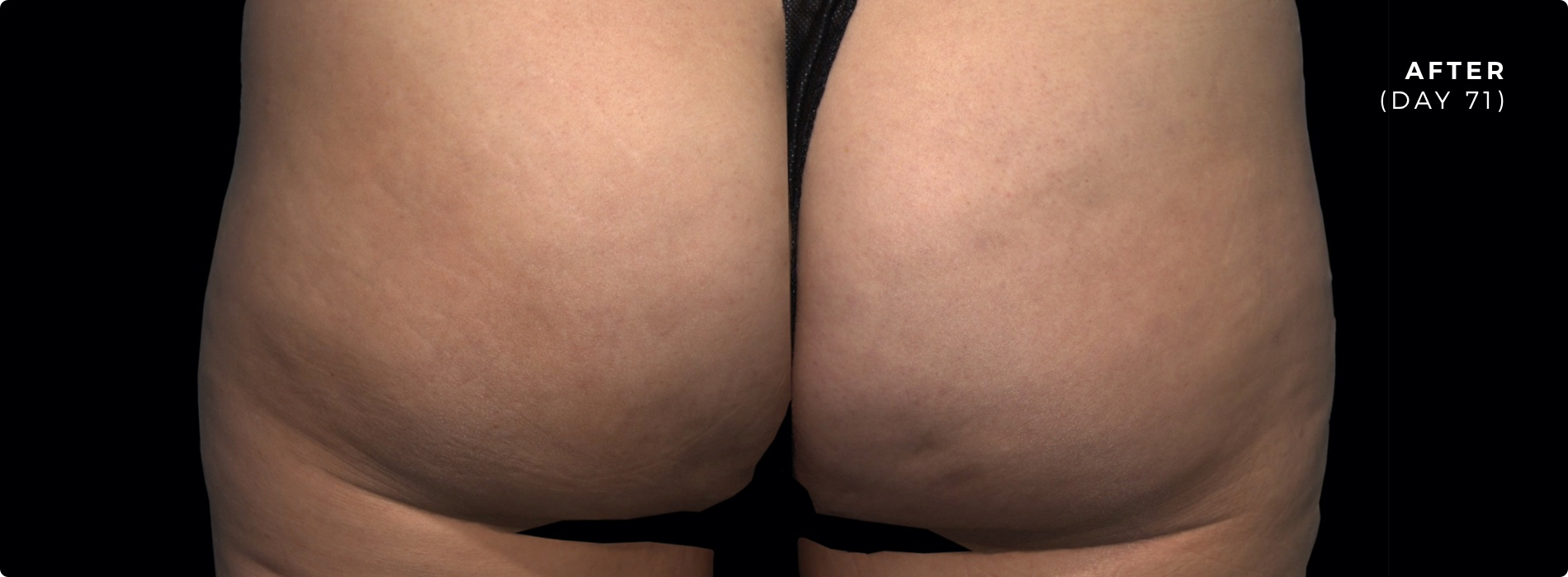 QWO Cellulite Reduction After 2