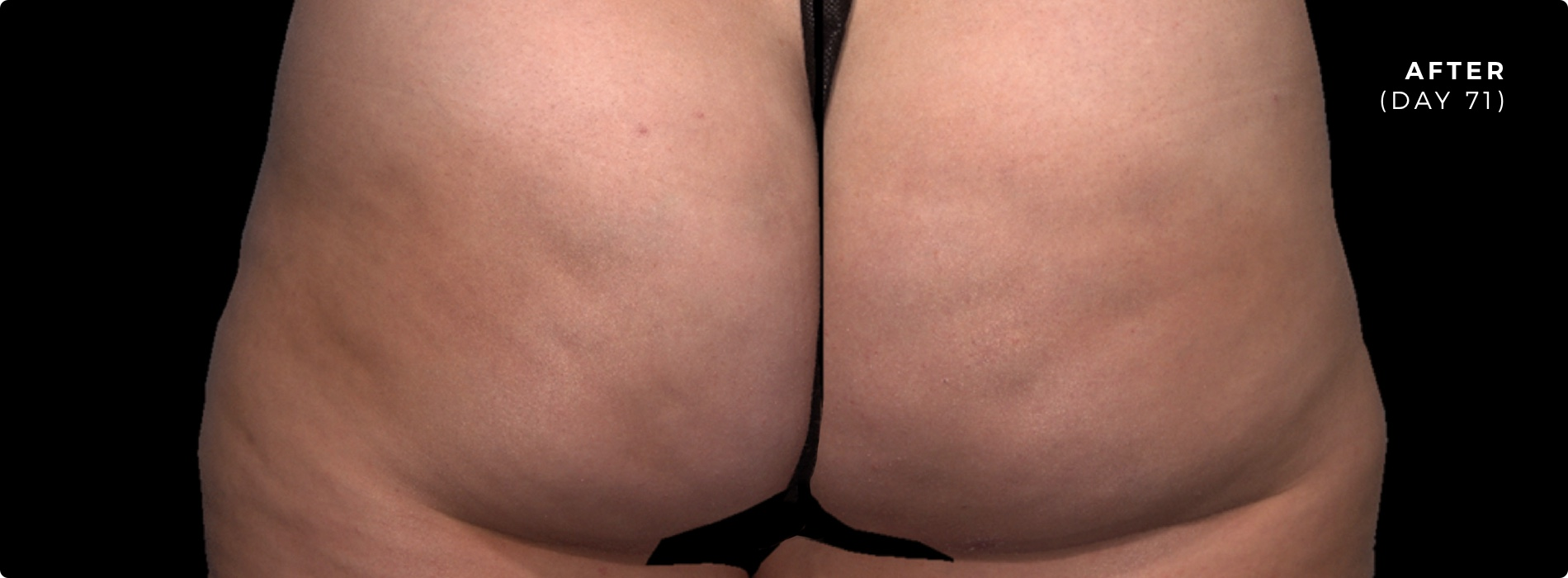 QWO Cellulite Reduction Before 2
