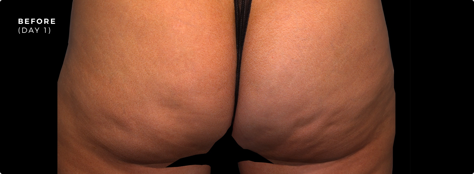 QWO Cellulite Reduction Before 1