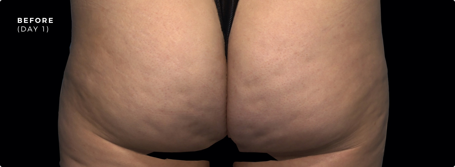 QWO Cellulite Reduction After 3