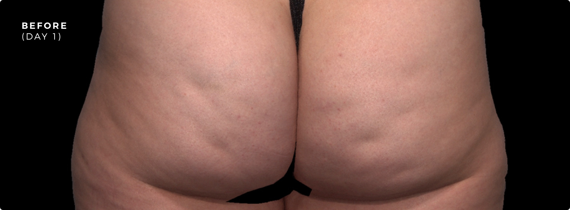 QWO Cellulite Reduction Before 3