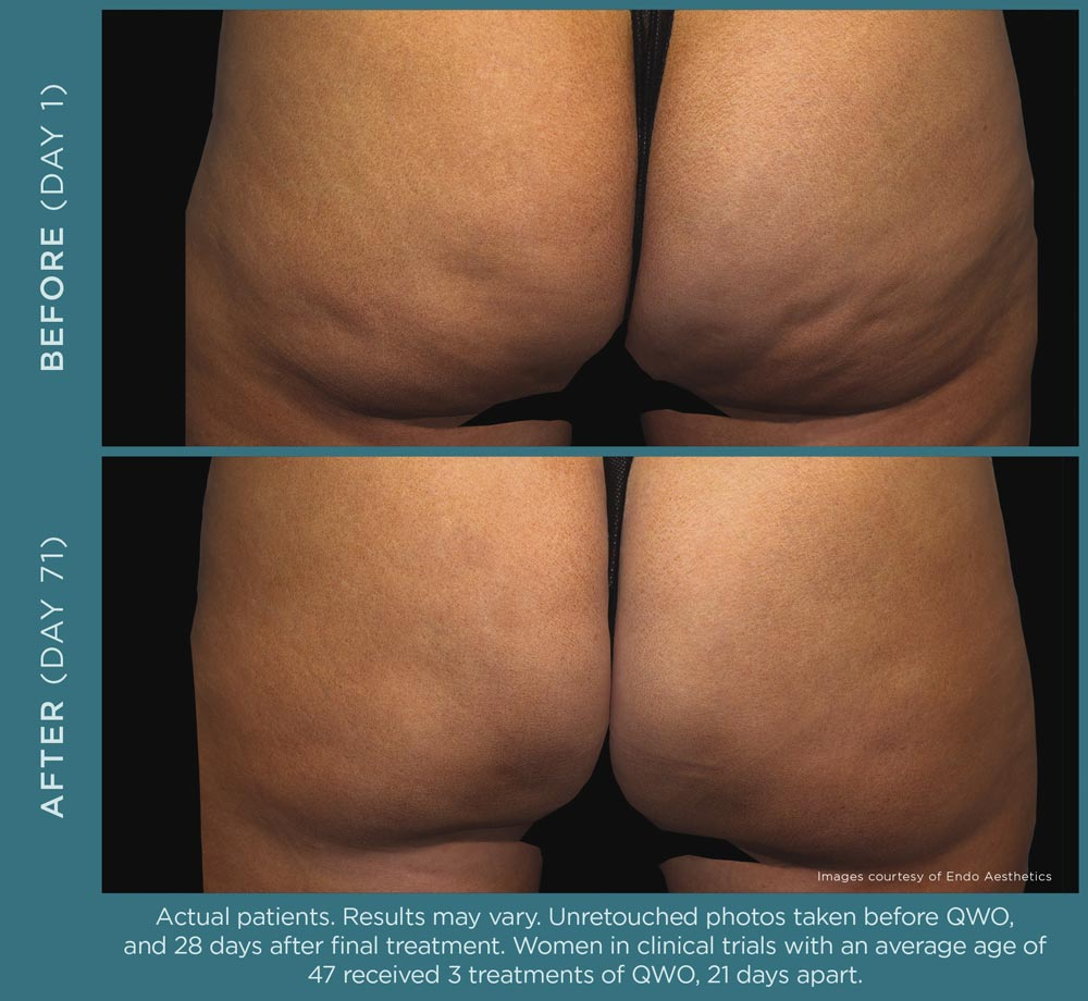 Qwo Cellulite Reduction Before and After 1