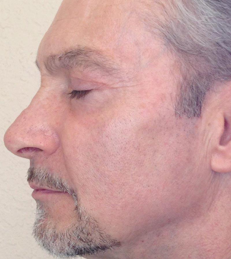 Halo + BBL Laser Skin Resurfacing After 1