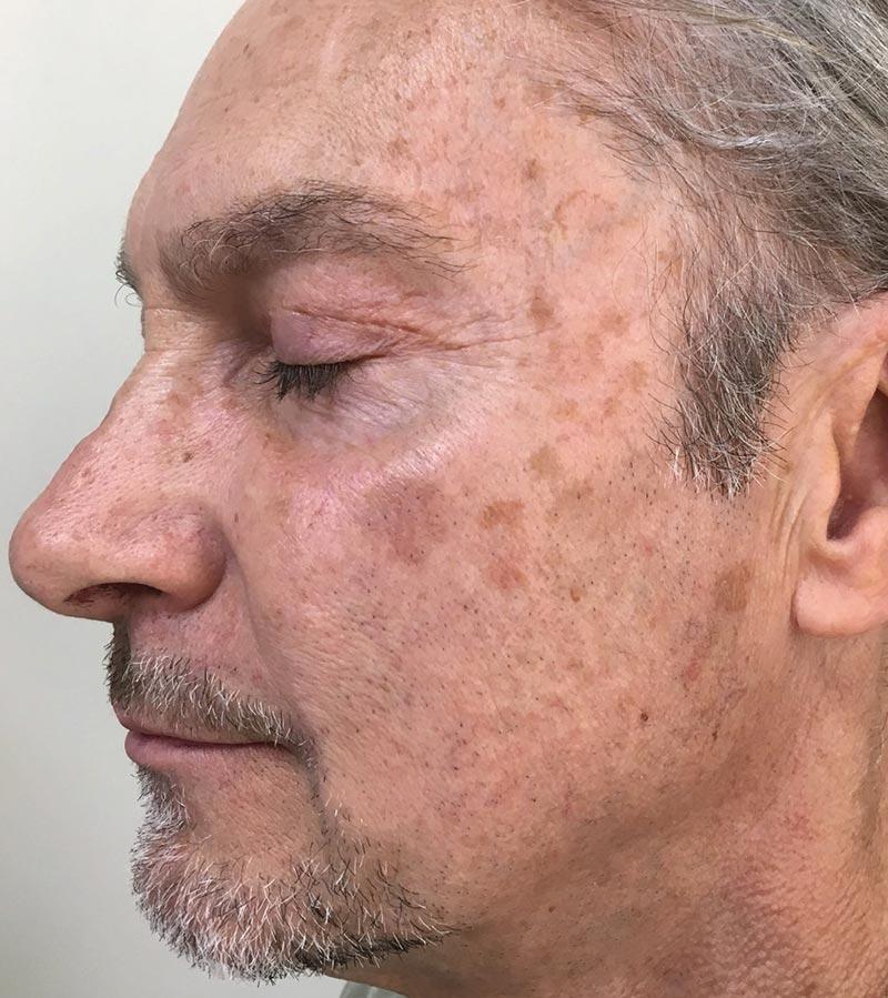 Halo + BBL Laser Skin Resurfacing Before 1