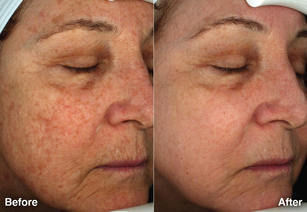 Halo Laser Before After 1