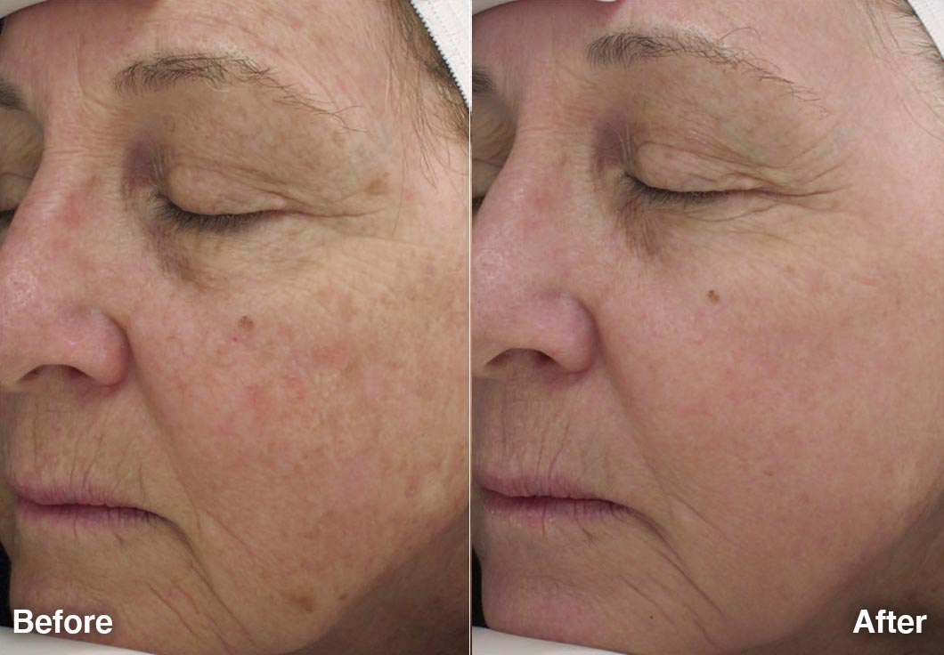 Halo Laser Before After 2